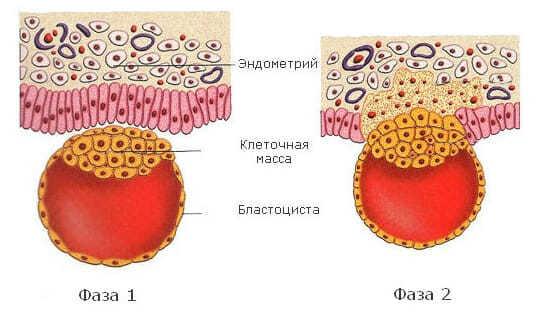 Имплантационное кровотечение: причины и механизм возникновения