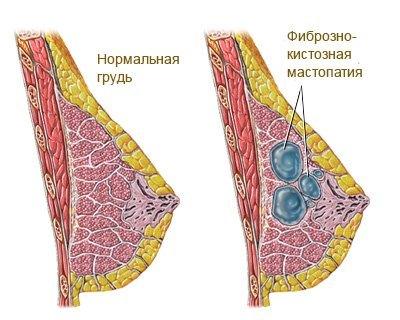 Фиброз матки: симптомы заболевания и эффективные виды лечения