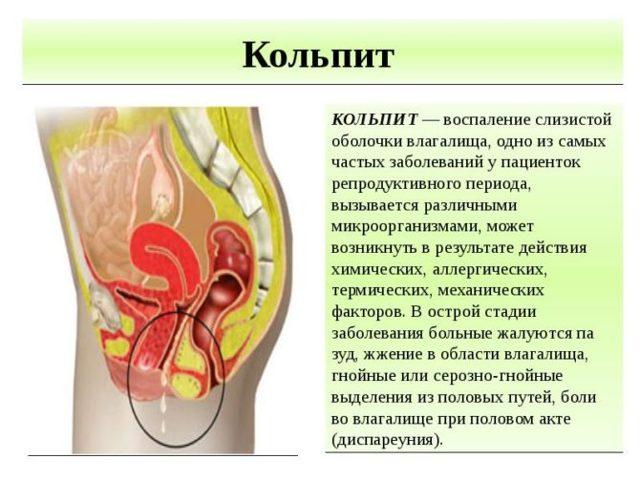Вагинит при беременности: причины, симптомы, лечение
