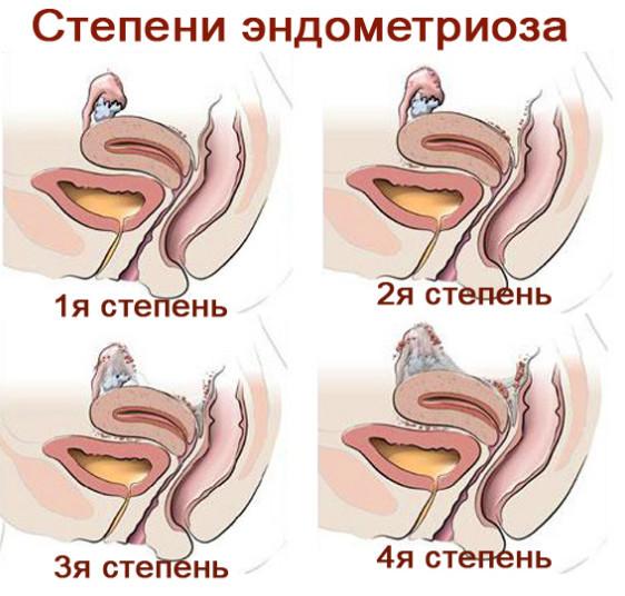 Эндометриоз 2 степени: особенности протекания и симптомы
