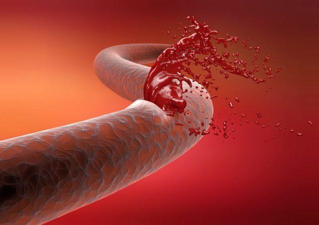 Тромбоциты при беременности: норма, патология, когда пора обратиться к врачу