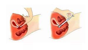 Какие свечи от воспаления в гинекологии наиболее эффективны?