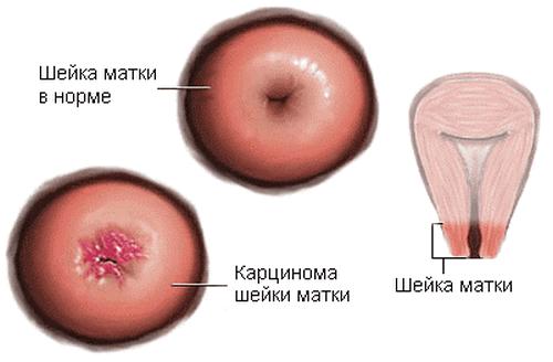 Папилломы на шейке матки: разновидности и причины их образования