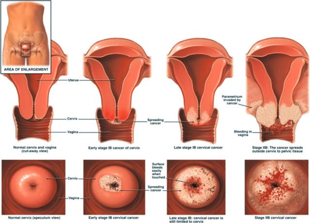 Врожденная эрозия шейки матки: симптомы, причины и лечение