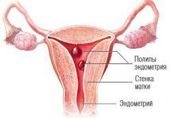 Эндометрий переходного типа: особенности патологии, лечение
