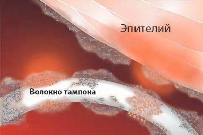 Может ли тампон уйти внутрь матки и как его извлечь?