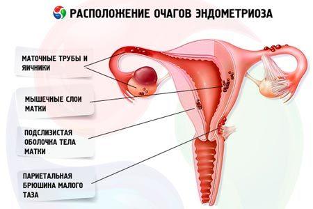 Очаговый эндометриоз: причины, симптомы и лечение