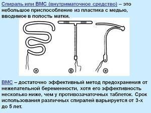 Внутриматочная спираль: показания, противопоказания, установка