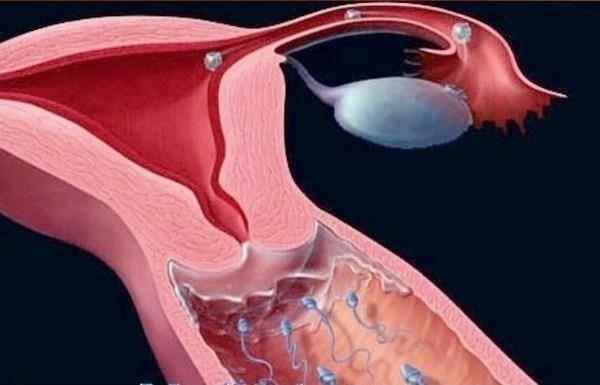 Шеечный фактор бесплодия: влияние и суть патологии