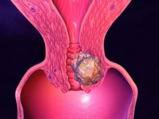 Видно ли на УЗИ эрозию шейки матки у женщины?