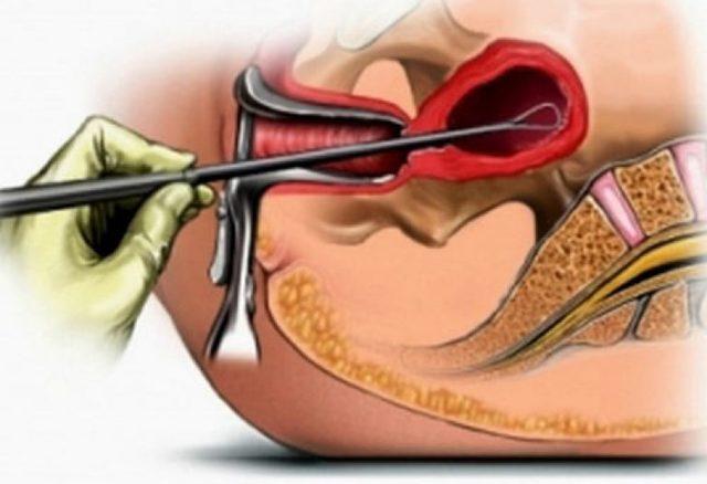 Беременность после гистероскопии: кому делают, через сколько можно, статистика, риски