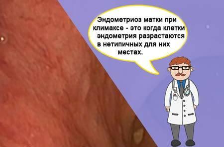 Эндометриоз при климаксе: симптомы и лечение состояния