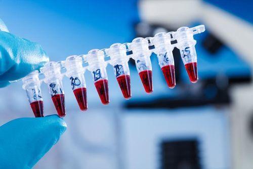 Анализы при инфекциях при беременности: схемы обследований, какие сдают, правила сдачи