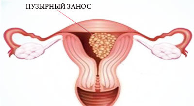 Кровотечение при беременности: причины, лечение