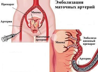 Фибромиома матки: гистология, локализация, особенности