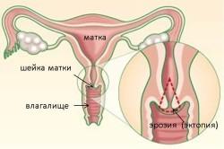 Прижигание эрозии шейки матки: способы проведения и особенности