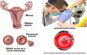 Конизация шейки матки при дисплазии: показания, стоимость, эффективность