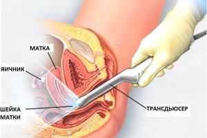 Можно ли обнаружить полип эндометрия на УЗИ и как он выглядит на снимке.