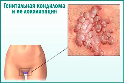 ВПЧ при беременности: причины, симптомы, опасность для плода