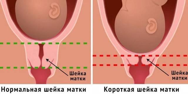 Цервикальный канал при беременности: нормы, изменения, патологии, профилактика