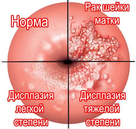 Гипер-паракератоз многослойного плоского эпителия и очаговая слабая дисплазии cin1/lsil