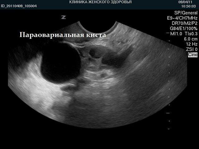 Киста яичника при беременности: почему возникает, опасна ли, виды, симптомы, лечение, профилактика