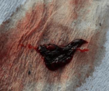 Как выглядит струп после прижигания эрозии: особенности и характеристики
