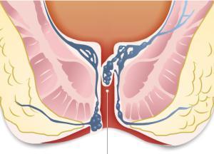 Безорнил при беременности: польза и вред