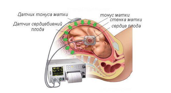 Гипертонус передней стенки матки при беременности: причины, симптомы, лечение