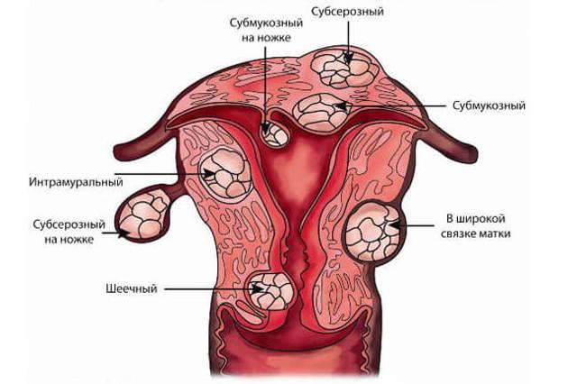Регресс: миома матки и гормональный статус