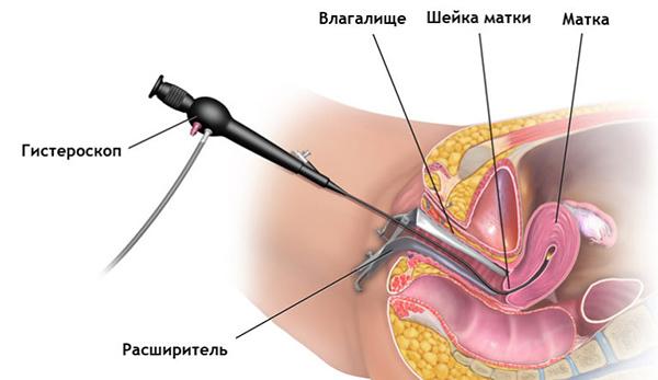 Обязательно ли нужно удалять полип в матке или есть шанс обойтись без хирургического вмешательства?