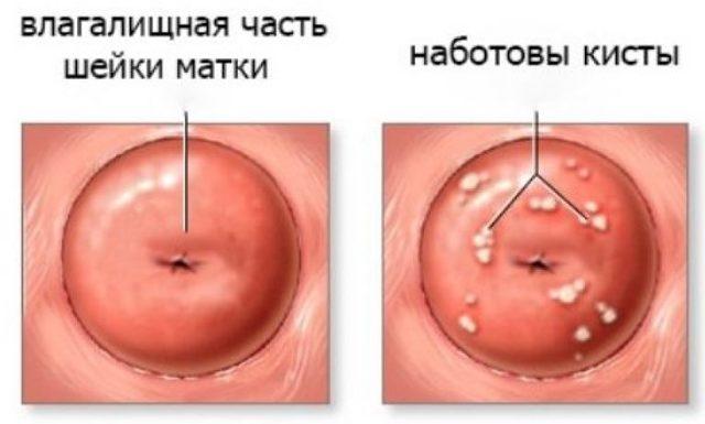 Кисты эндоцервикса на шейке матки: особенности и лечение