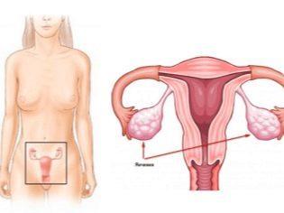 Бывает ли овуляция при беременности и опасно ли это?