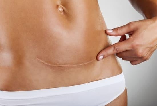 Разрыв матки по рубцу во время беременности: часто ли случается?