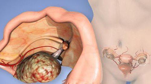 Острый оофорит: особенности протекания и характеристики болезни