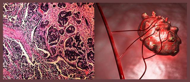 Карциносаркома матки: причины, симптомы, лечение и прогноз
