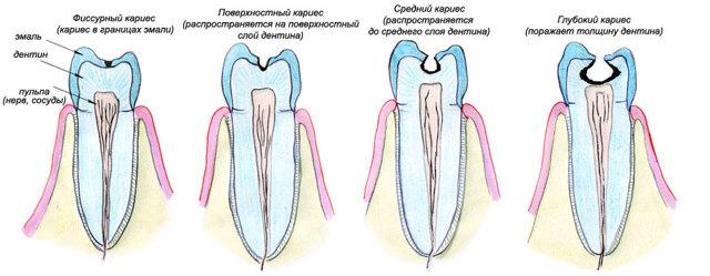 Зубная боль при беременности: причины, лечение