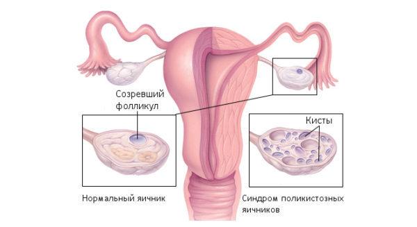 Стимуляция овуляции при поликистозе яичников: способы и методы
