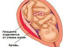 Старение плаценты при беременности: причины, нормально ли, как происходит, как предотвратить