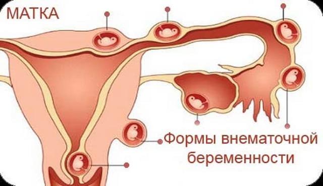 Может ли тест на беременность ошибаться: причины ложноотрицательного и ложноположительного результата, правила тестирования