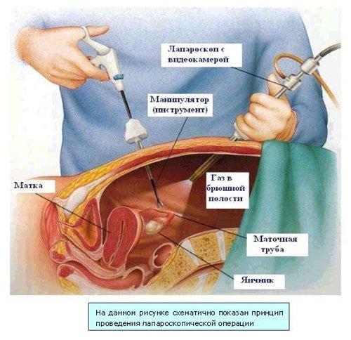 Внематочная трубная беременность: особенности, характеристики