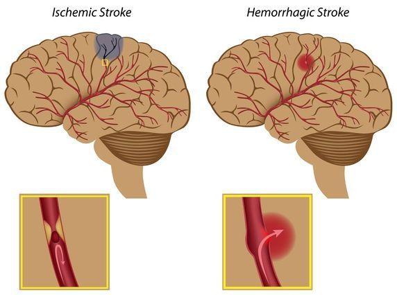 Артериальная гипертензия при беременности: эпидемиология, классификация, патогенез, причины, симптомы, диагностика, лечение, осложнения, методы родоразрешения