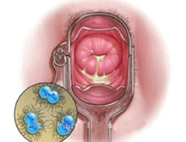 Кольпит при беременности: причины, симптомы, лечение и последствия