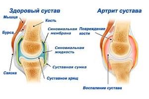 Ревматоидный артрит и беременность: взаимное протекание
