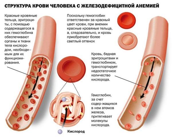 Анемия при беременности: причины, симптомы, стадии, последствия, диагностика, лечение, диета, профилактика