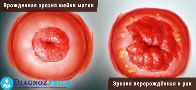 Кольпоскопия при эрозии шейки матки: как проводится процедура