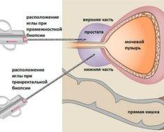 Выделения после биопсии шейки матки: причины, опасны ли?
