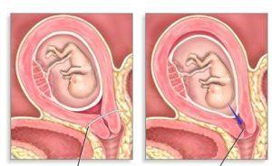 ИЦН при беременности: причины, лечение, чем опасна?