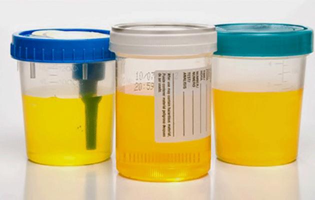 Сахар в моче при беременности: причины, лечение