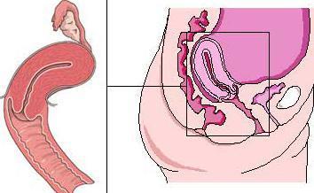 Всё, что нужно знать об антепозиции матки